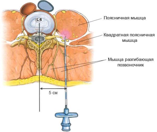 milgamma az osteochondrozisban